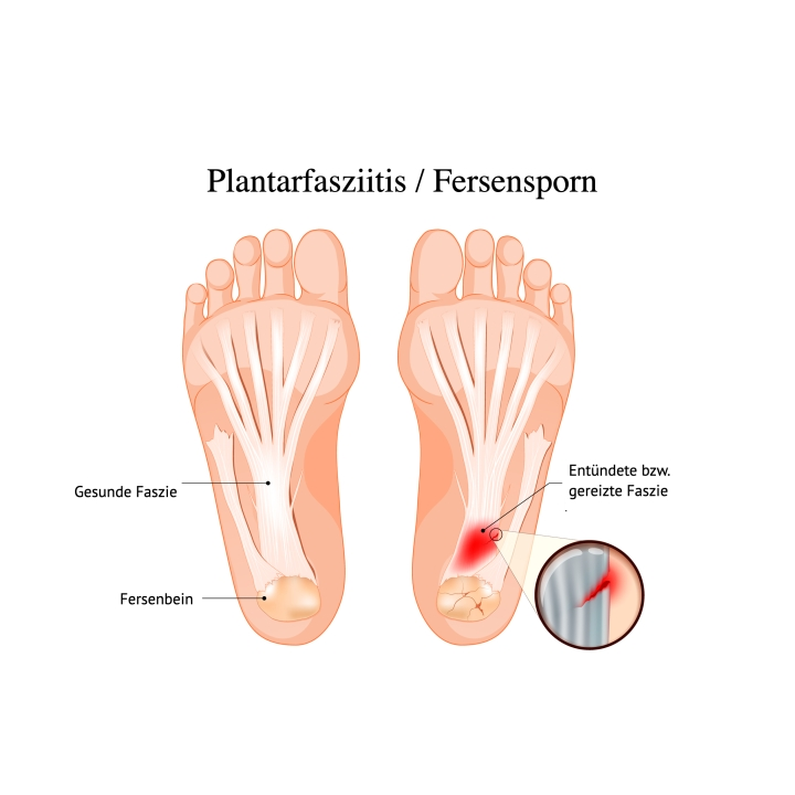 Das Bild zeigt eine Fußsohle, dessen schmerzhafter Bereich rot markiert ist.